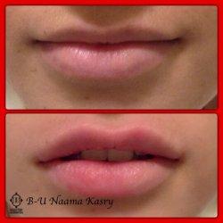 שפתיים1