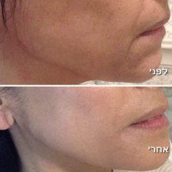 before-after-face-treatment
